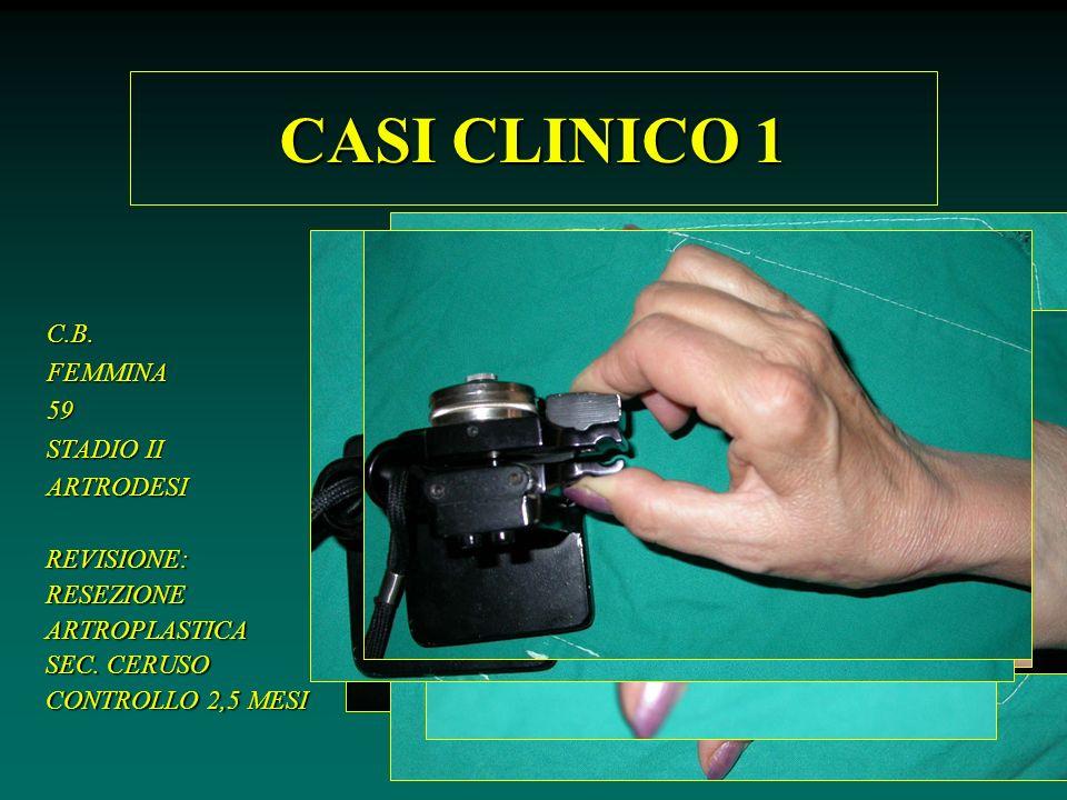 CASI CLINICO 1 C.B. FEMMINA 59 STADIO II ARTRODESI REVISIONE: