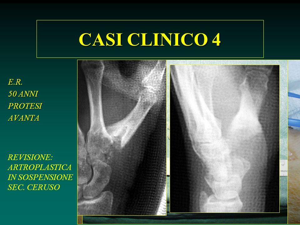 CASI CLINICO 4 E.R. 50 ANNI PROTESI AVANTA REVISIONE: ARTROPLASTICA