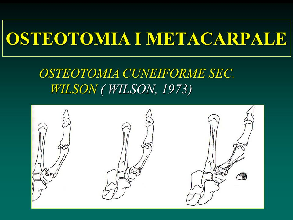 OSTEOTOMIA I METACARPALE