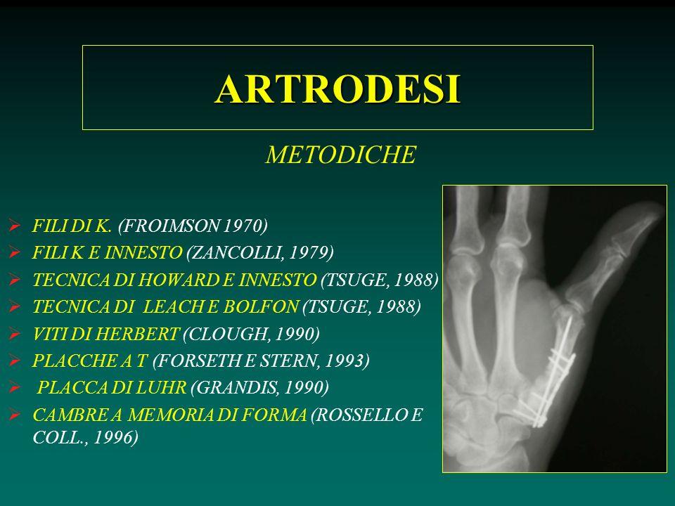 ARTRODESI METODICHE FILI DI K. (FROIMSON 1970)
