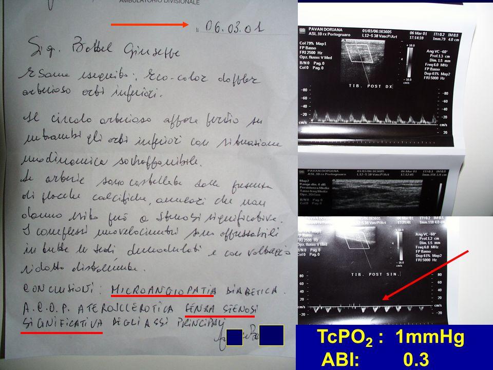 TcPO2 : 1mmHg ABI: 0.3