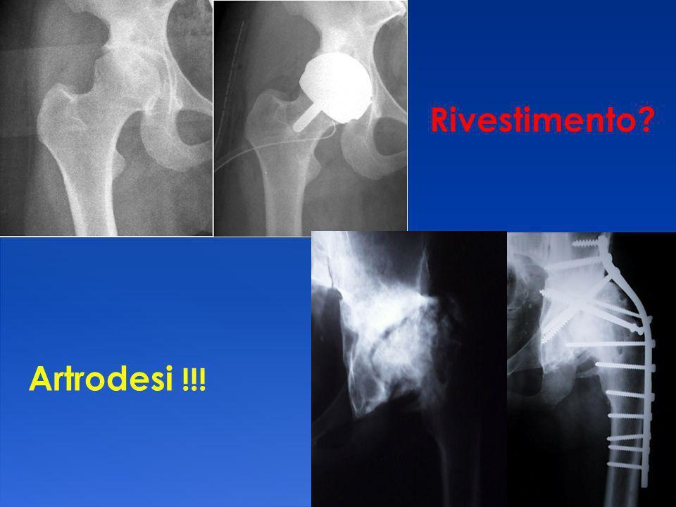 Rivestimento Artrodesi !!!