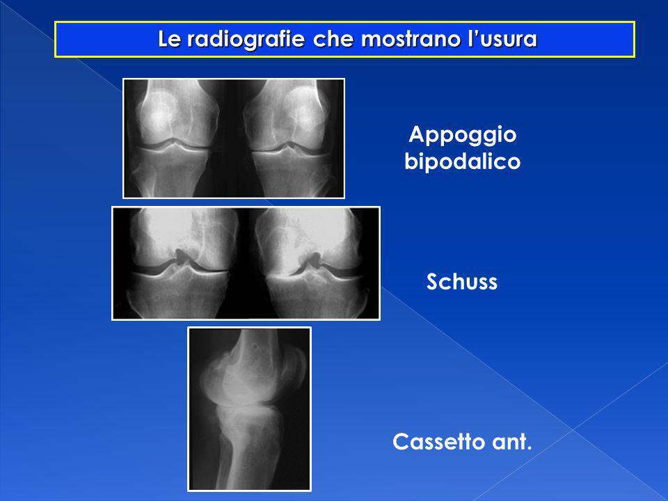 Le radiografie che mostrano l'usura