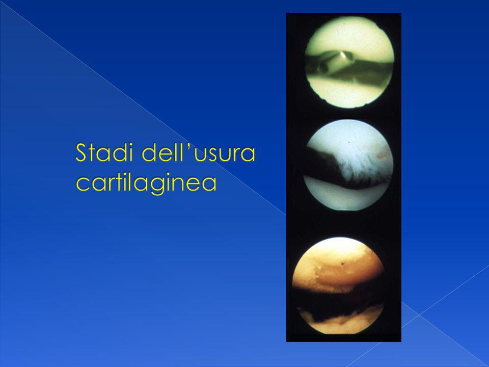Stadi dell'usura cartilaginea