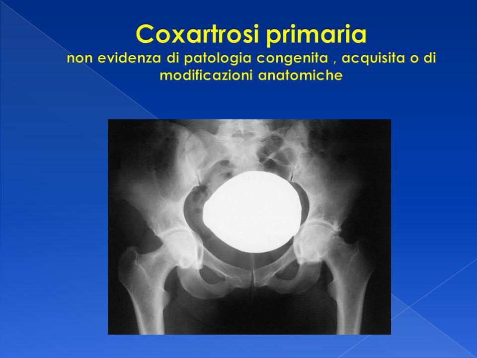 Coxartrosi primaria non evidenza di patologia congenita , acquisita o di modificazioni anatomiche