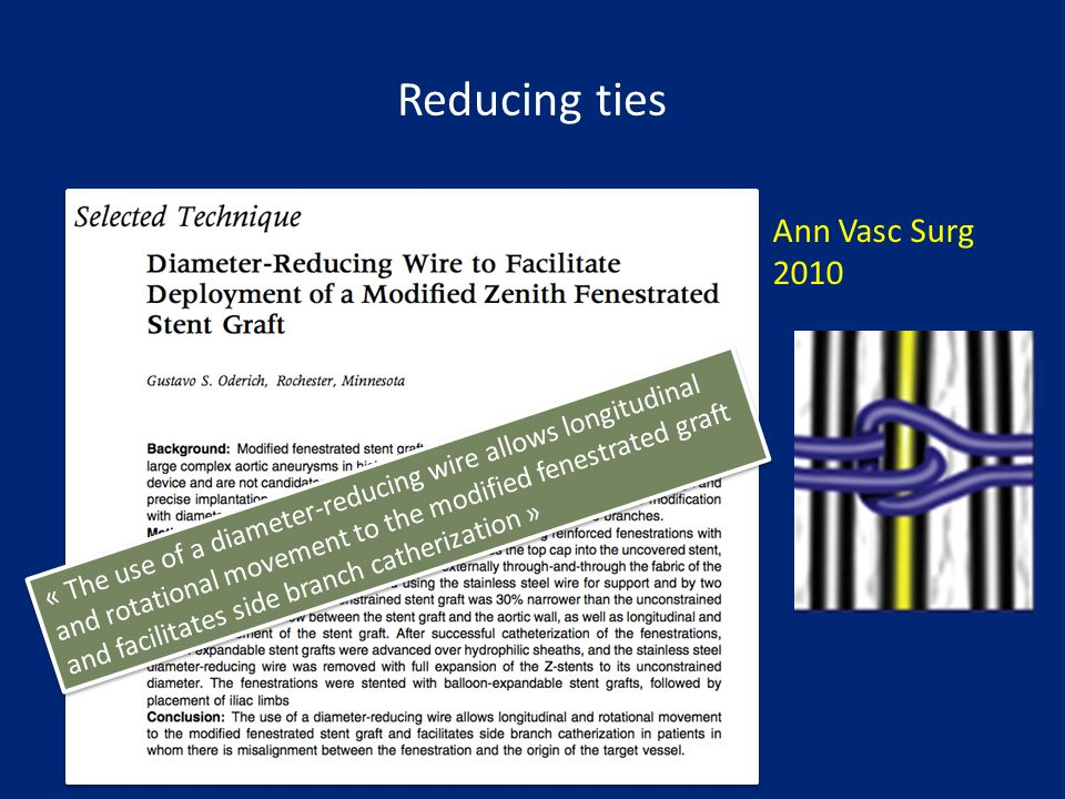 Reducing ties Ann Vasc Surg 2010