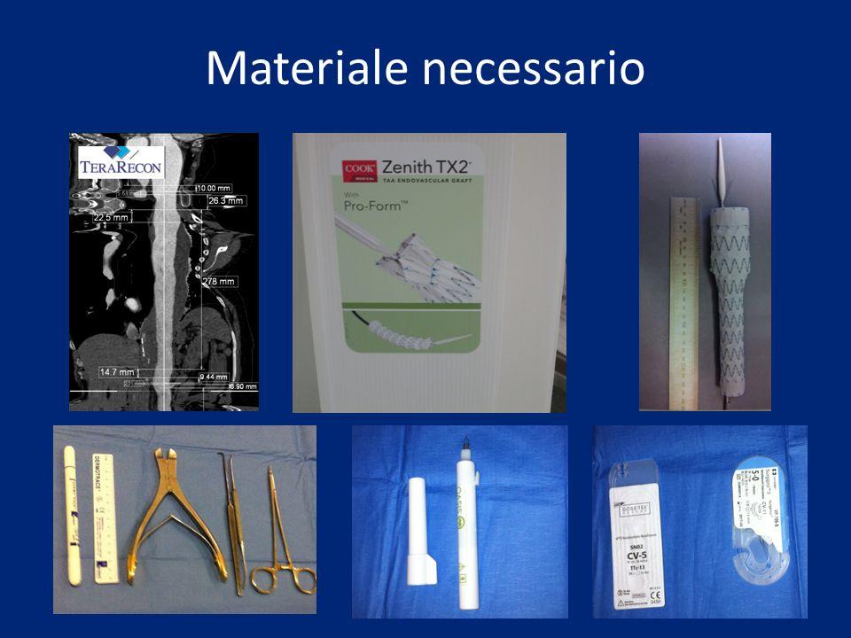 Materiale necessario