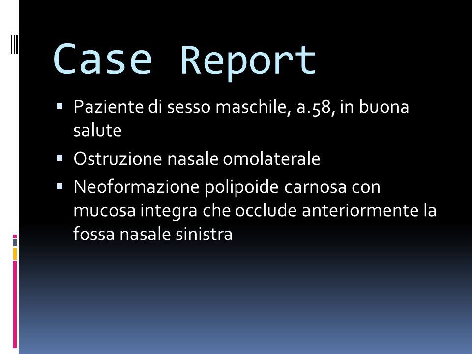 Case Report Paziente di sesso maschile, a.58, in buona salute
