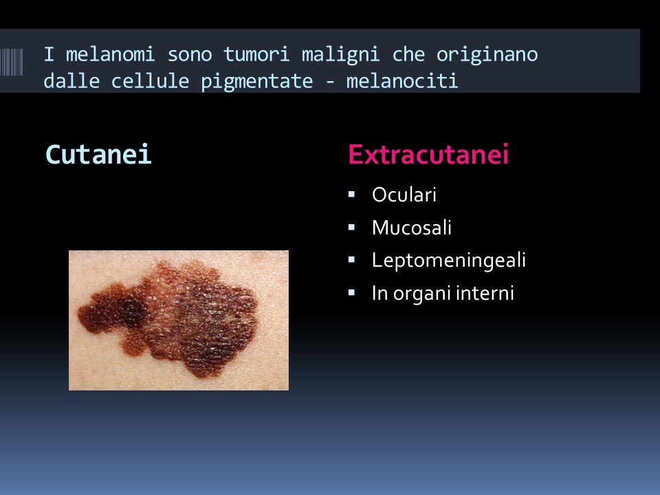 I melanomi sono tumori maligni che originano dalle cellule pigmentate - melanociti