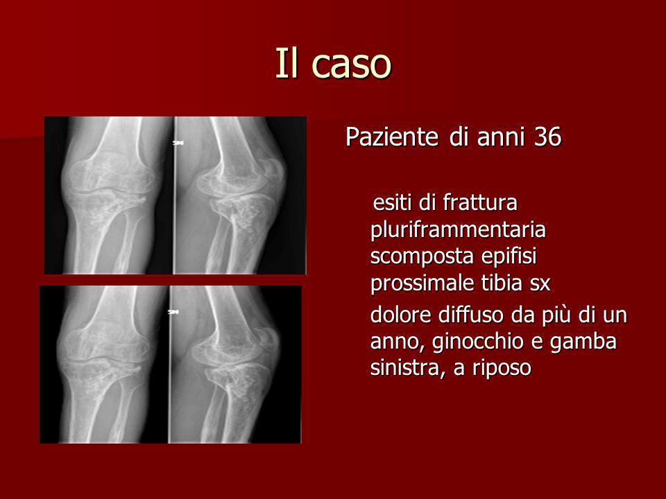 Il caso Paziente di anni 36