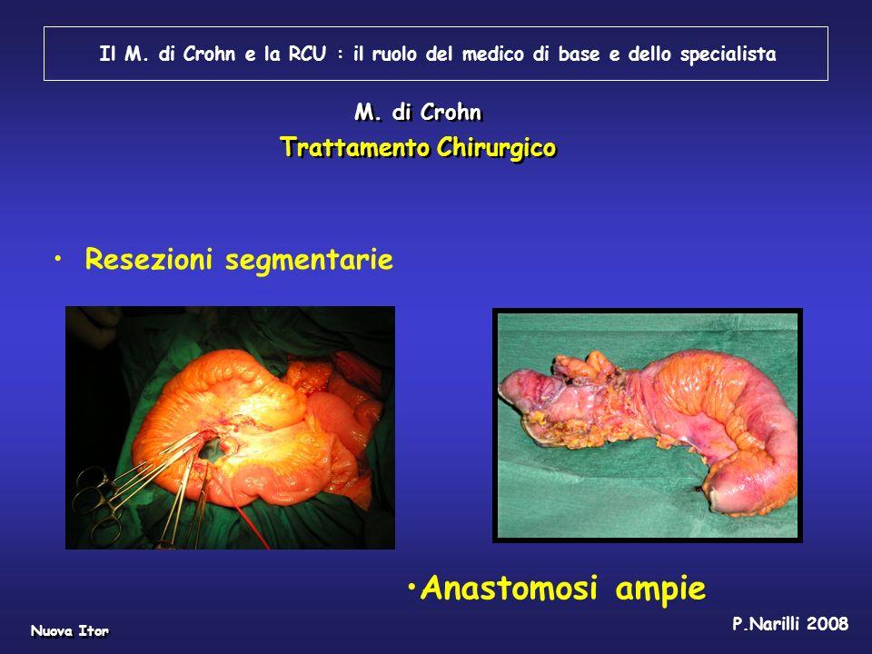 Anastomosi ampie Resezioni segmentarie Trattamento Chirurgico