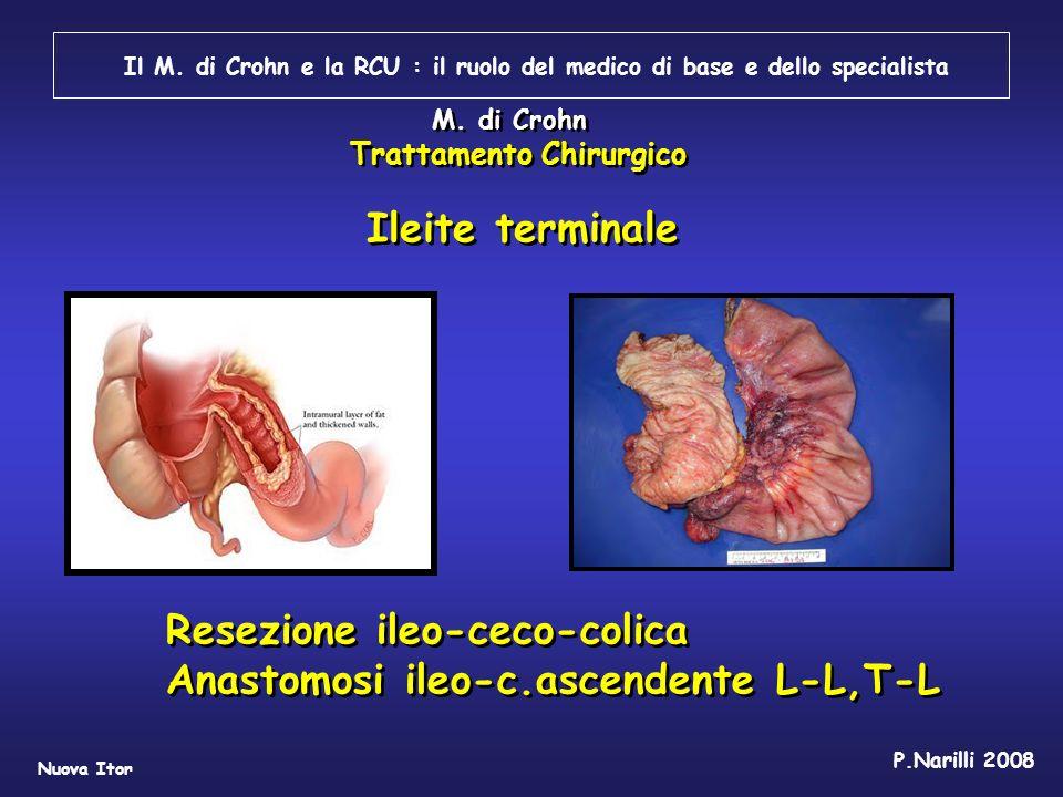 Resezione ileo-ceco-colica Anastomosi ileo-c.ascendente L-L,T-L