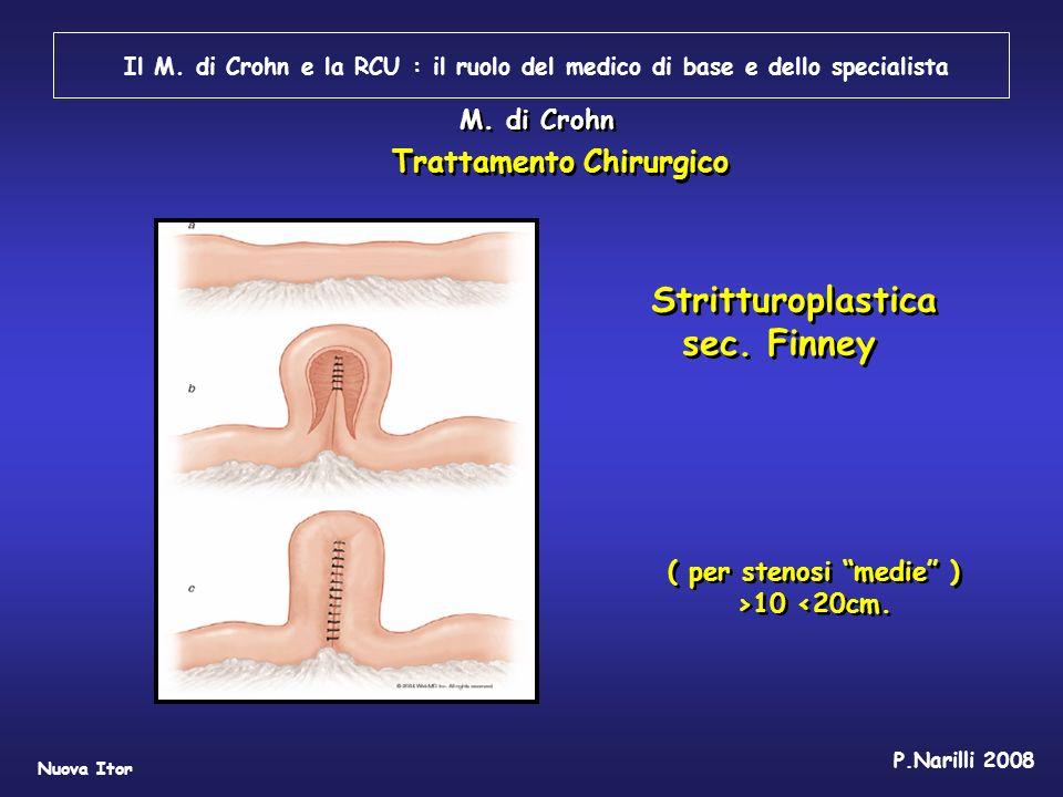 Stritturoplastica sec. Finney Trattamento Chirurgico