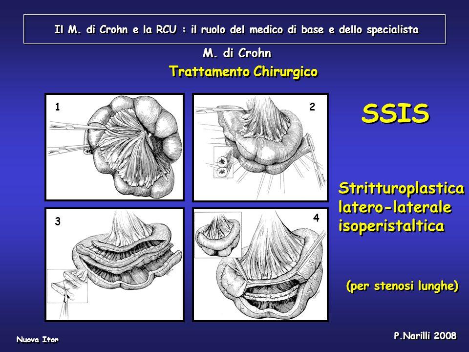 SSIS Stritturoplastica latero-laterale isoperistaltica