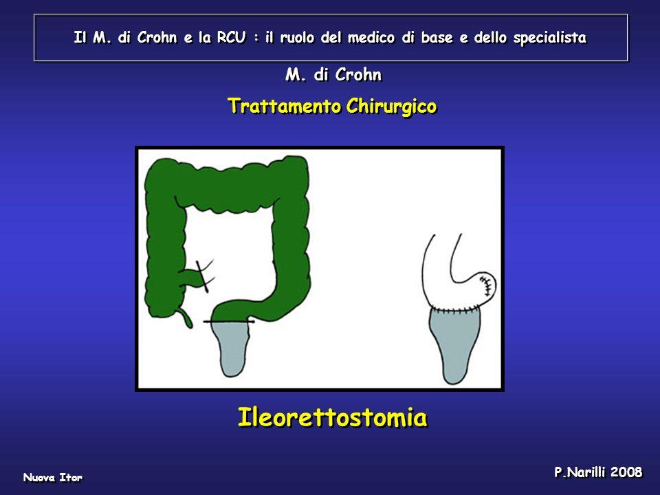 Ileorettostomia Trattamento Chirurgico M. di Crohn