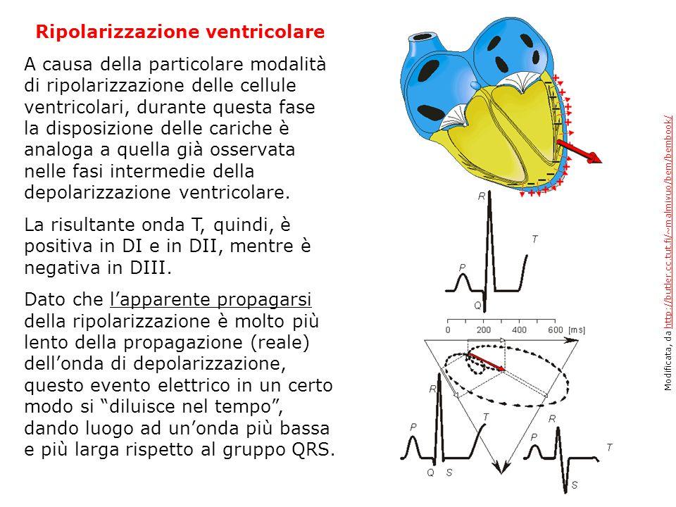 Ripolarizzazione ventricolare