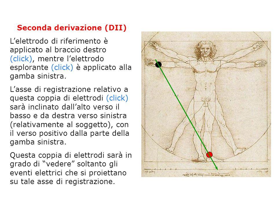 Seconda derivazione (DII)