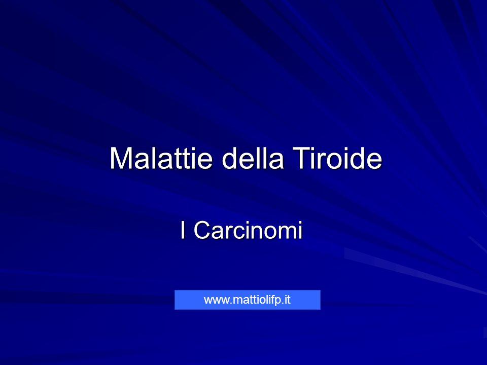 Malattie della Tiroide I Carcinomi