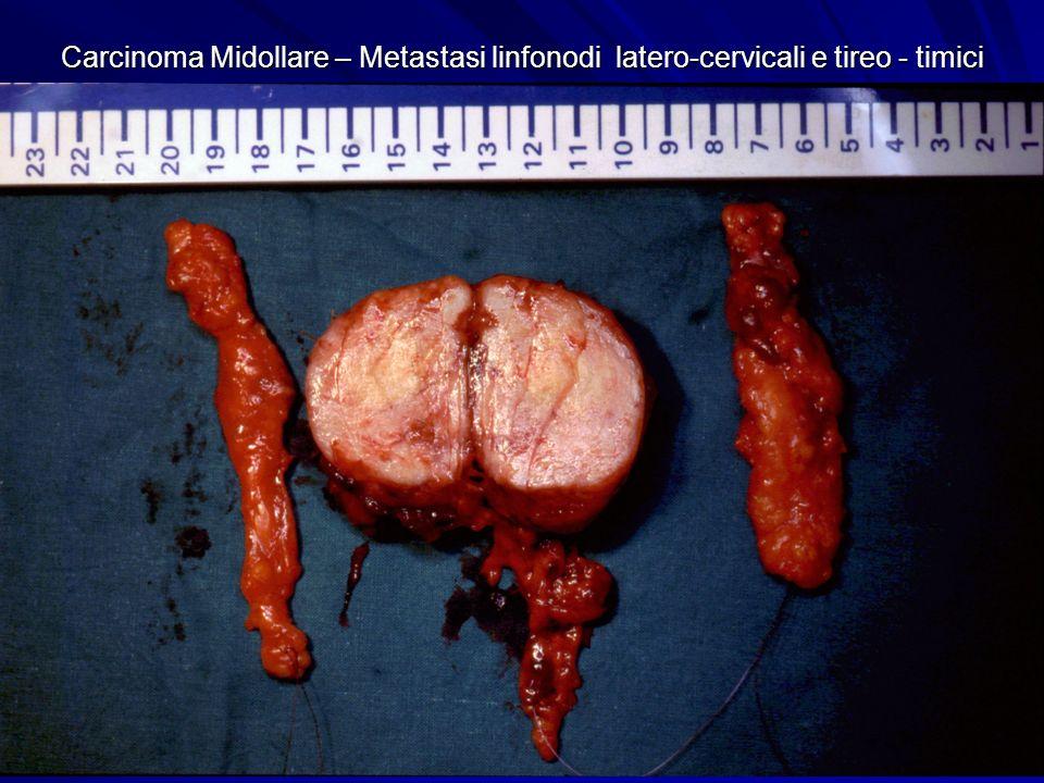 Carcinoma Midollare – Metastasi linfonodi latero-cervicali e tireo - timici