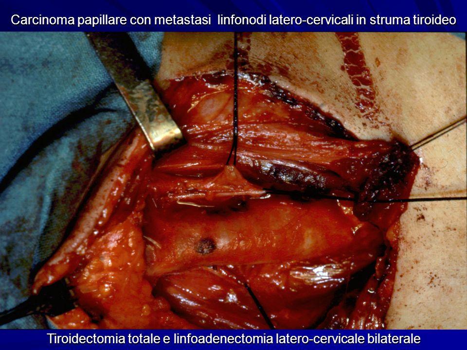 Tiroidectomia totale e linfoadenectomia latero-cervicale bilaterale