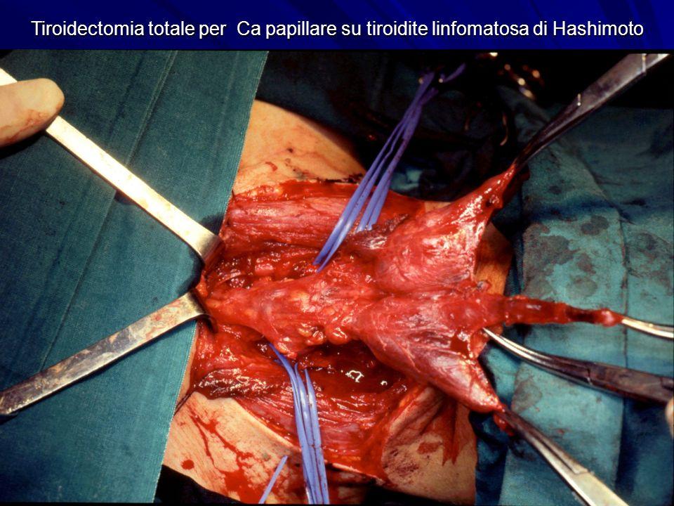 Tiroidectomia totale per Ca papillare su tiroidite linfomatosa di Hashimoto