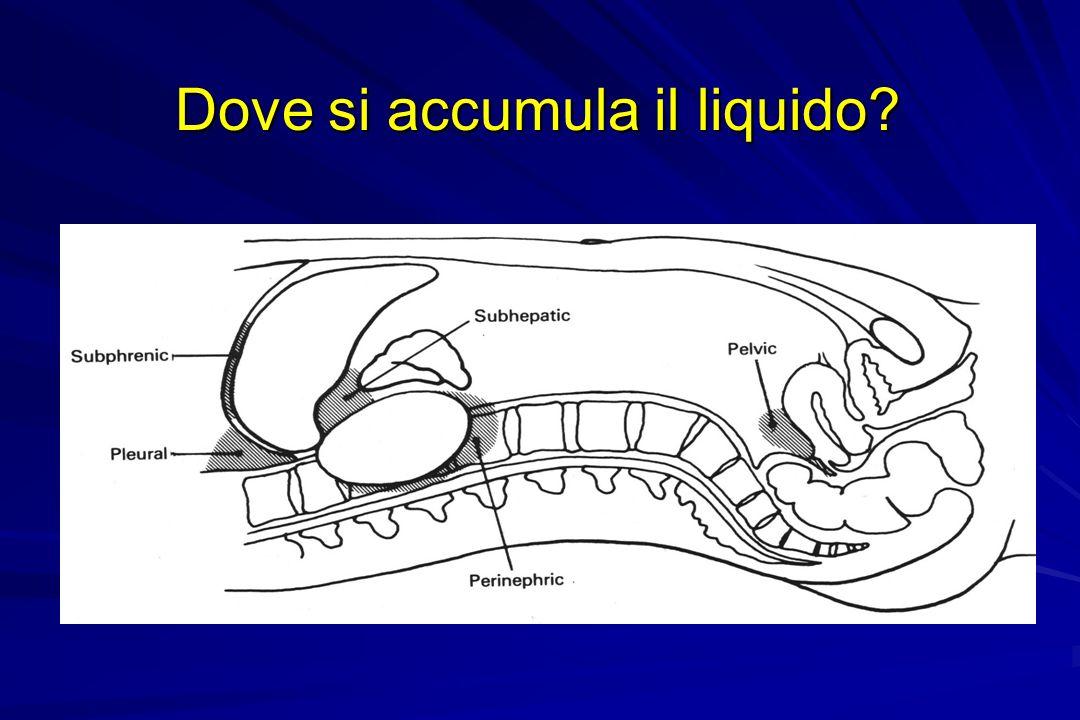 Dove si accumula il liquido