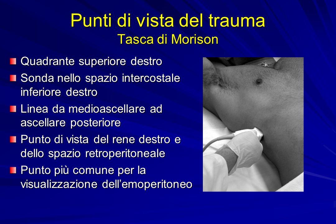 Punti di vista del trauma Tasca di Morison
