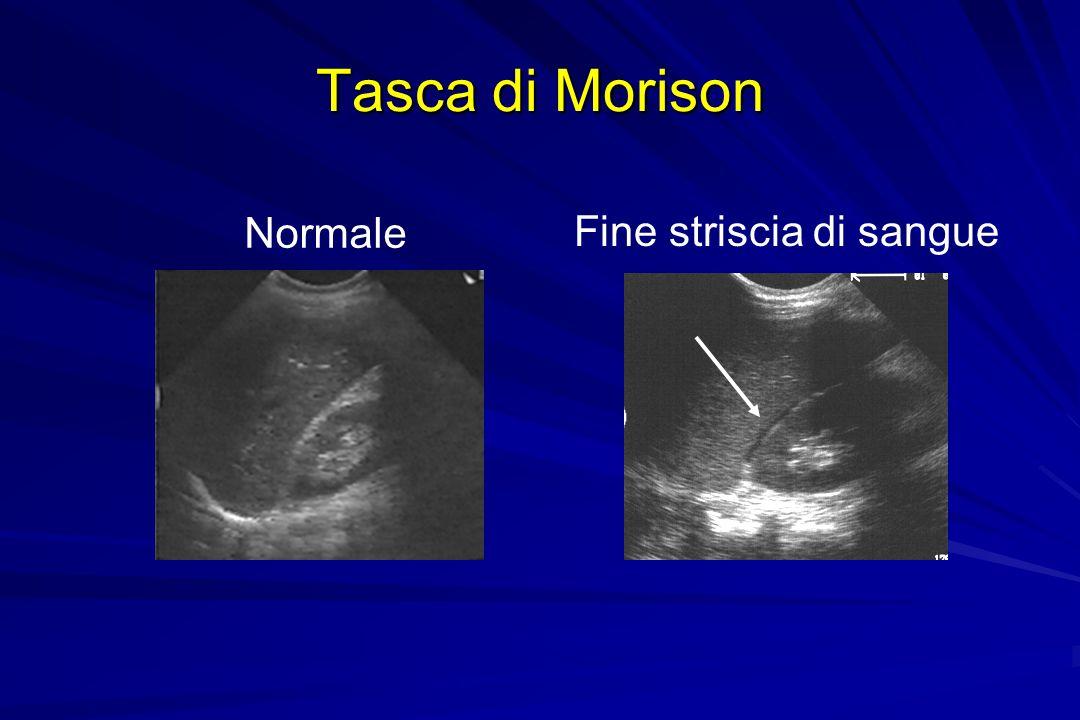 Tasca di Morison Normale Fine striscia di sangue Morrison's Pouch
