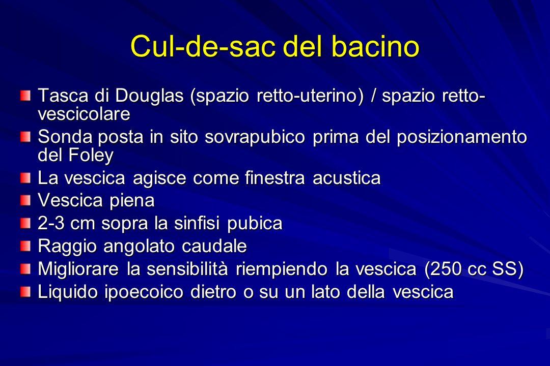 Cul-de-sac del bacino Tasca di Douglas (spazio retto-uterino) / spazio retto-vescicolare.