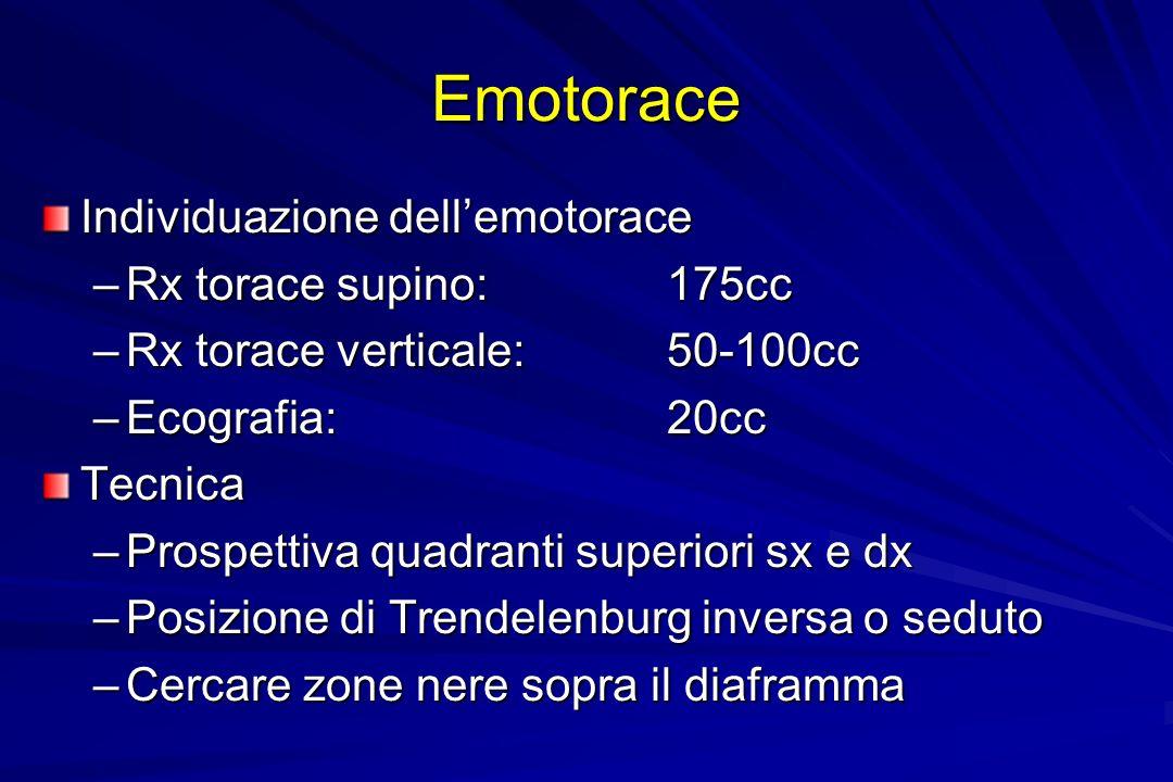 Emotorace Individuazione dell'emotorace Rx torace supino: 175cc