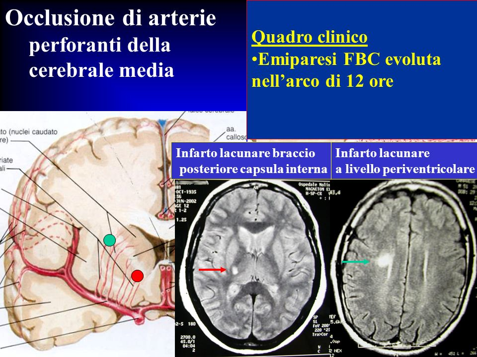 Occlusione di arterie perforanti della cerebrale media