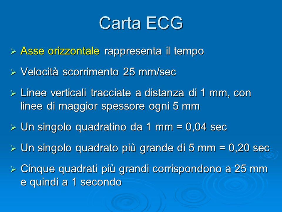 Carta ECG Asse orizzontale rappresenta il tempo