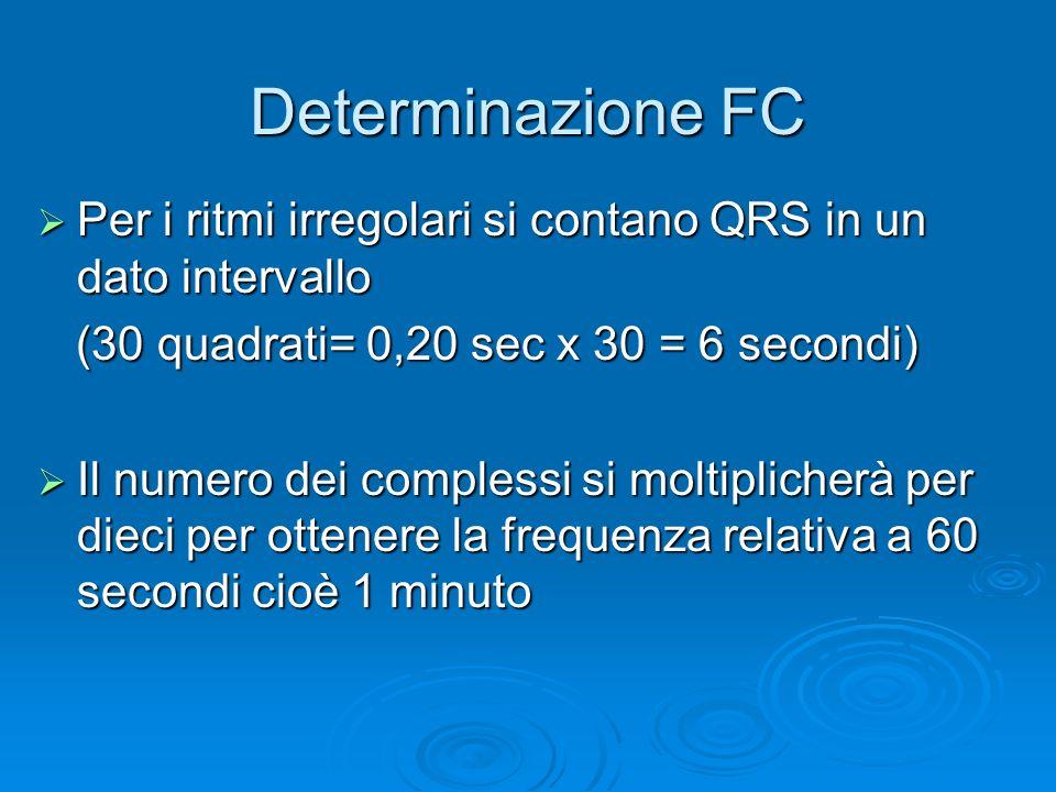 Determinazione FC Per i ritmi irregolari si contano QRS in un dato intervallo. (30 quadrati= 0,20 sec x 30 = 6 secondi)