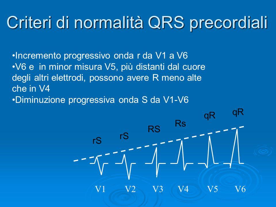Criteri di normalità QRS precordiali