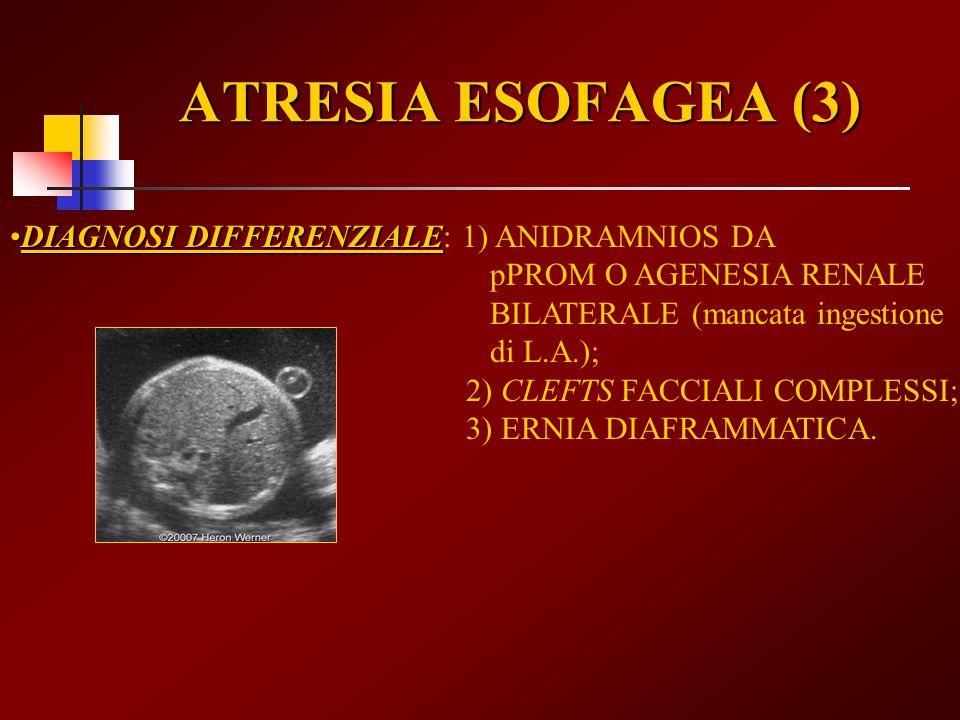 ATRESIA ESOFAGEA (3)