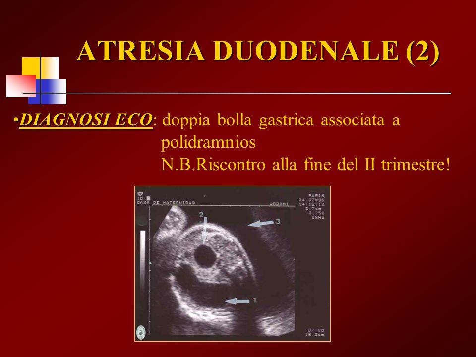 ATRESIA DUODENALE (2) DIAGNOSI ECO: doppia bolla gastrica associata a