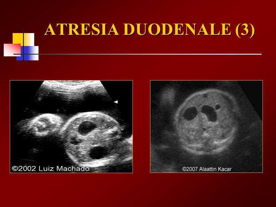 ATRESIA DUODENALE (3)