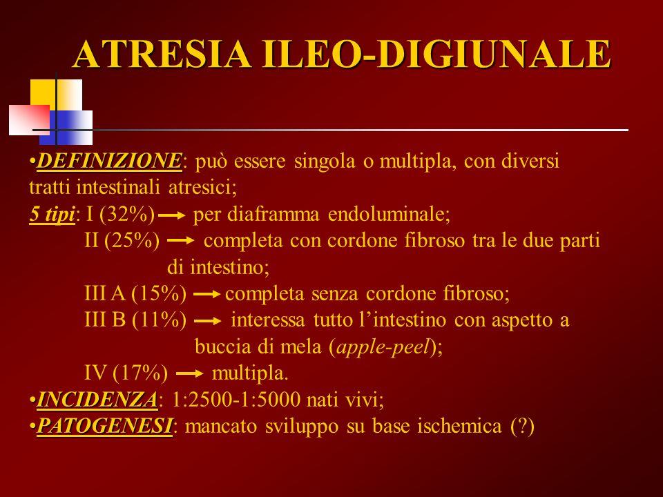 ATRESIA ILEO-DIGIUNALE