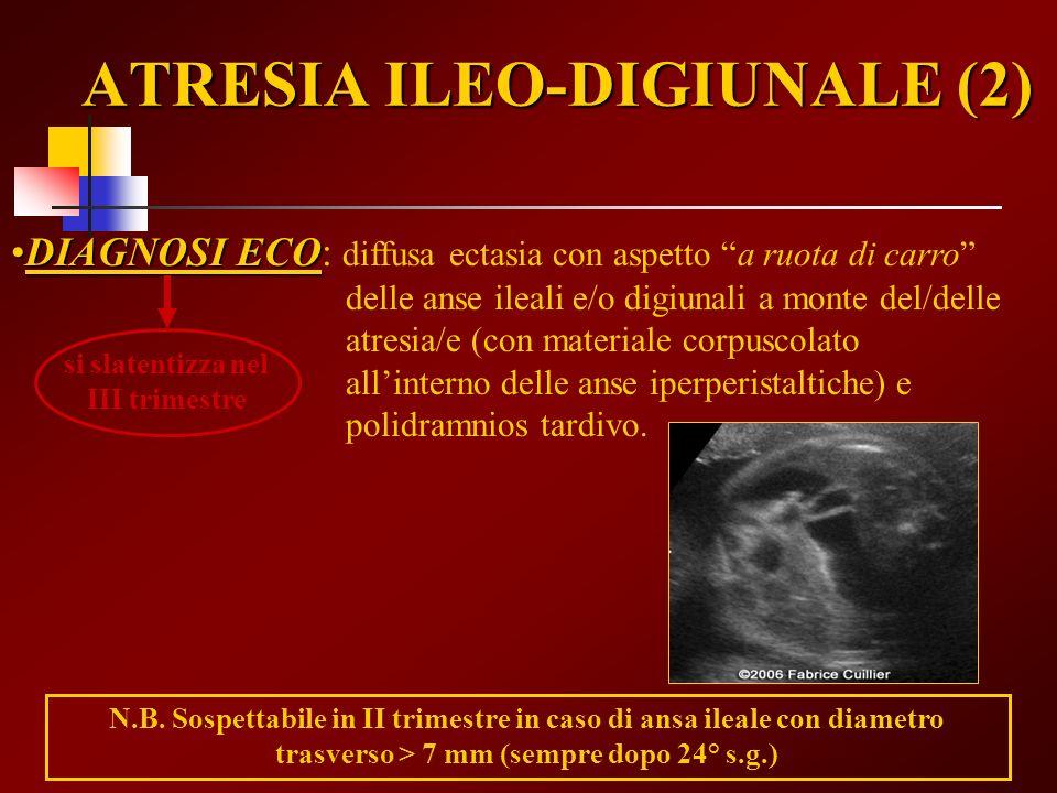 ATRESIA ILEO-DIGIUNALE (2)
