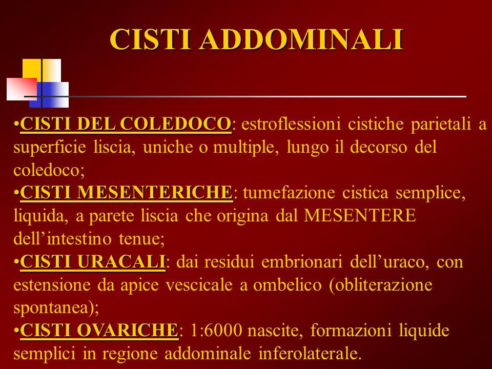CISTI ADDOMINALI CISTI DEL COLEDOCO: estroflessioni cistiche parietali a superficie liscia, uniche o multiple, lungo il decorso del coledoco;