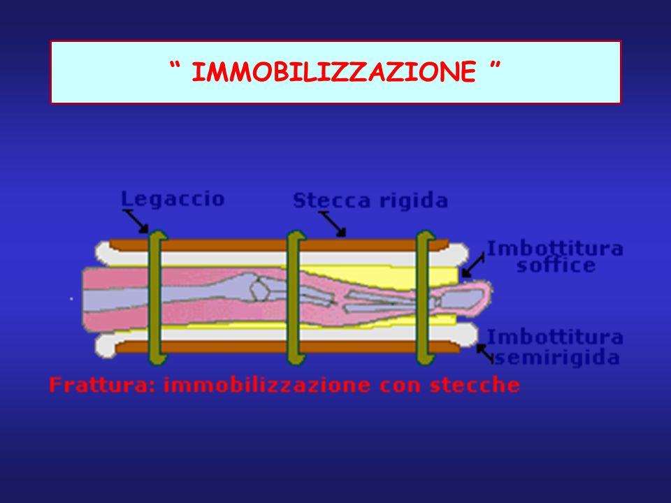 IMMOBILIZZAZIONE
