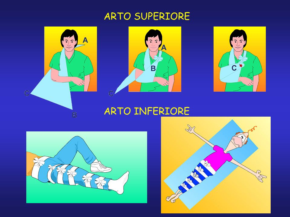 ARTO SUPERIORE ARTO INFERIORE