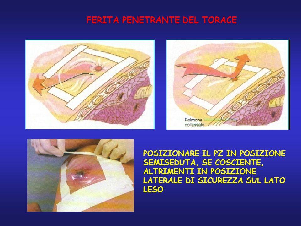 FERITA PENETRANTE DEL TORACE