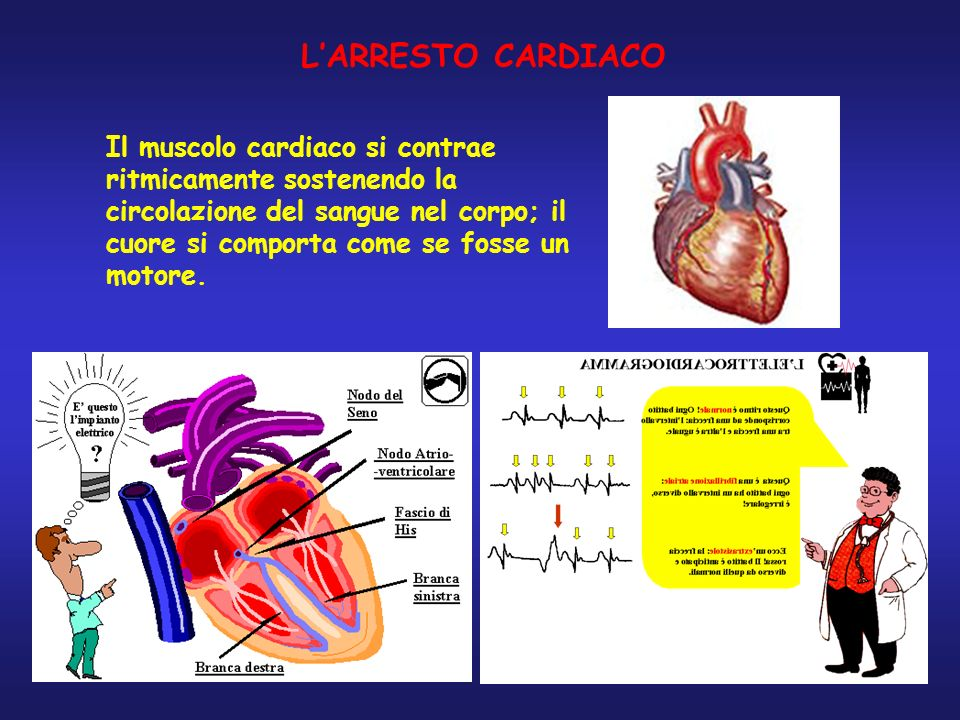 L'ARRESTO CARDIACO