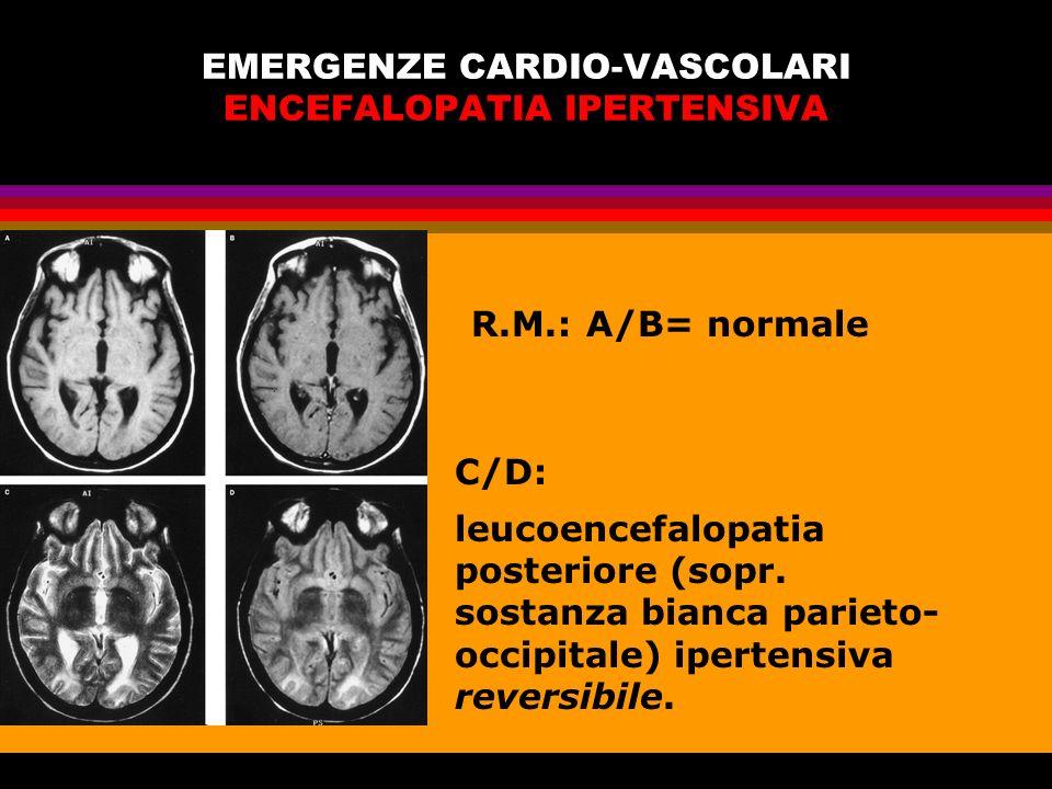 EMERGENZE CARDIO-VASCOLARI ENCEFALOPATIA IPERTENSIVA