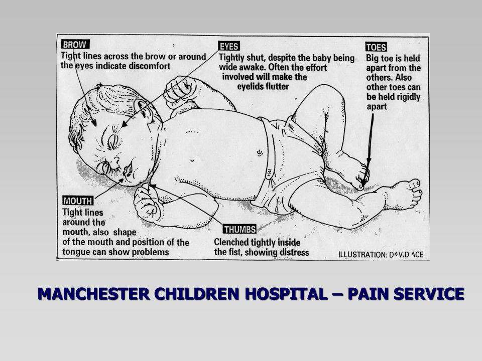 MANCHESTER CHILDREN HOSPITAL – PAIN SERVICE