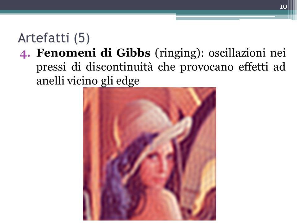 Artefatti (5) Fenomeni di Gibbs (ringing): oscillazioni nei pressi di discontinuità che provocano effetti ad anelli vicino gli edge.