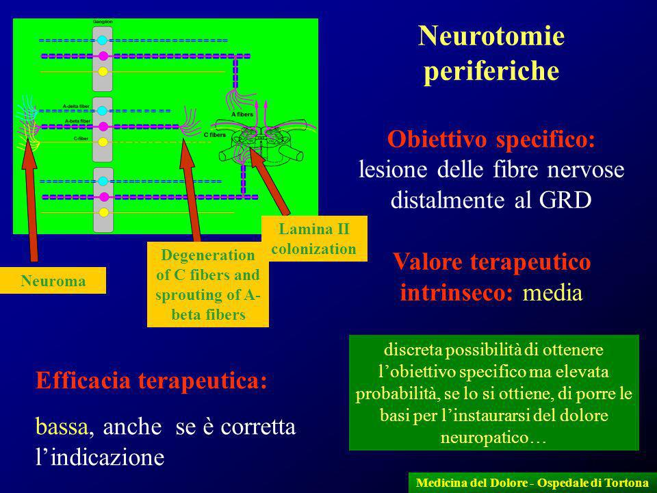 Neurotomie periferiche