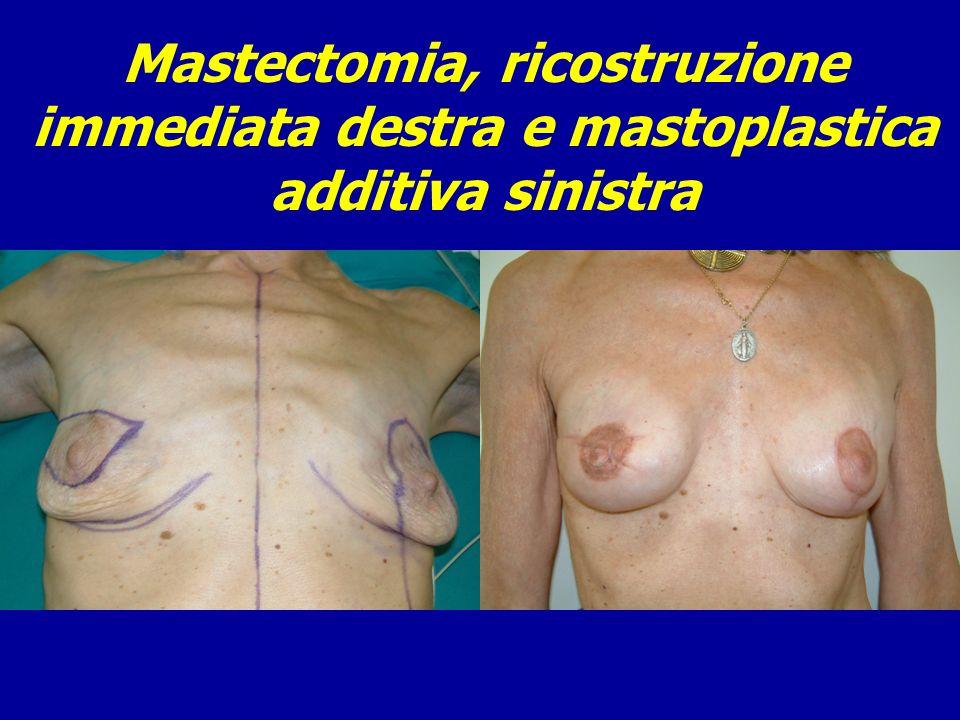 Mastectomia, ricostruzione immediata destra e mastoplastica additiva sinistra
