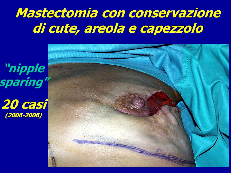 Mastectomia con conservazione di cute, areola e capezzolo